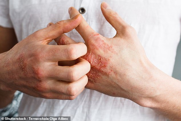 Eczema is a condition that causes the skin to become itchy, red, dry and cracked (pictured)