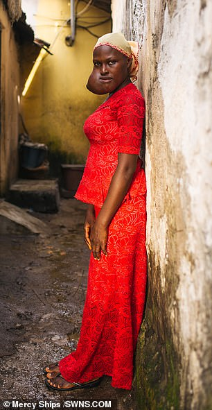 Isatu was often reduced to tears due to cruel strangers 'making fun' of her looks