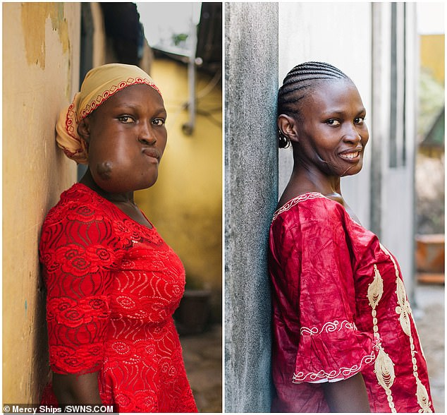 Isatuhas smiled for the first time in nearly 20 years (seen right) after doctors removed a massive facial tumour (left) and rebuilt her jaw from bone in her pelvis