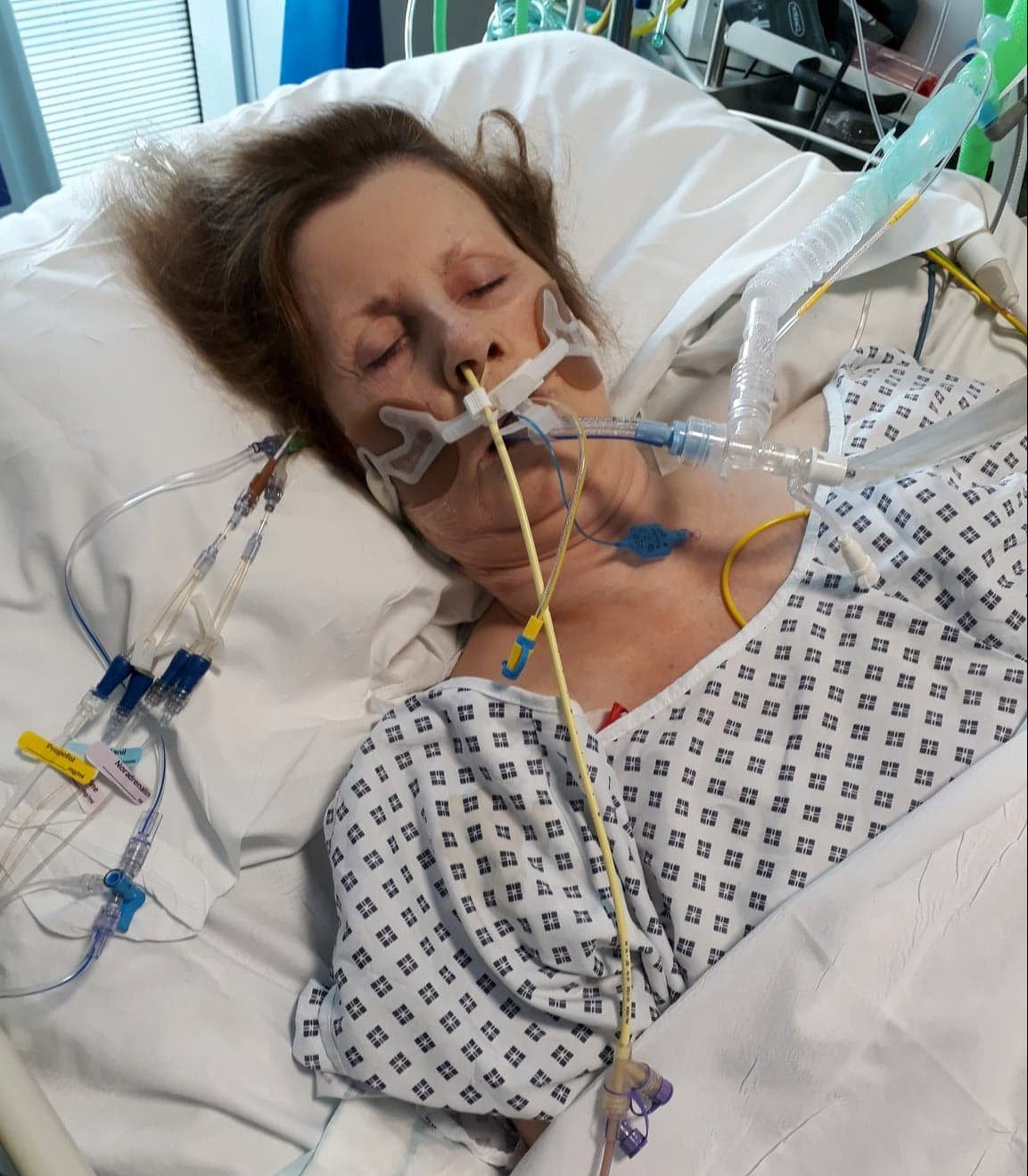 Shirley Hair spent five days in a medically-induced coma, and was in intensive care for over two months