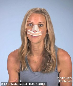 Megan said she wasn't patient for the results after having a piece of her ribcage used to repair her nose