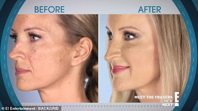 Megan, whose surname and age aren't known, asked the Botched doctors to fix her nose after the first surgery she had aged 13 went wrong. Pictured before and after the surgery