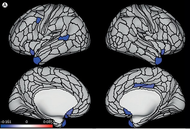 Pictured: The brain of an average life-long criminal from four angles. The blue areas are where the cortex is statistically thinner when comparing to someone who has not committed crime