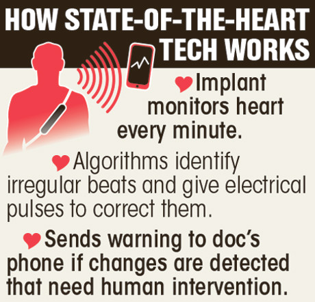 The heart implant fires off small electrical impulses if the heart is beating irregularly