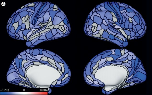 Life-long criminals have smaller brains and it may explain why they lie, steal or are violent, scientists say. They analysed brain scans of almost 700 people. Pictured: The average brain of a life-long criminal. Blue areas indicate which parts are smaller when comparing to someone who has never committed a crime. The darker the shade of blue, the stronger the change was