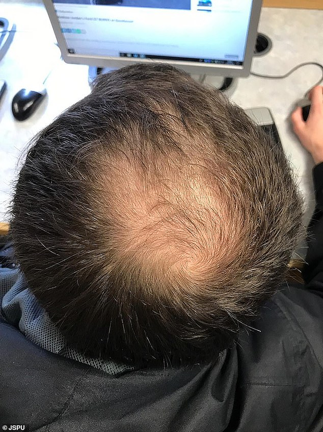 Scientists in Japan have developed a new technique that could reverse balding, by taking samples of special cells from hair follicles on the back of a person's head and transplanting them into areas with less hair growth on the top of their head